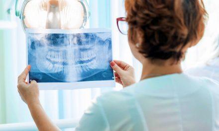 Jak wygląda rentgen zęba?